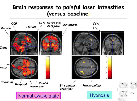 Réponse du cerveau à la douleur avec l'hypnose